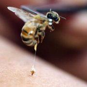bee-sting_1626213c