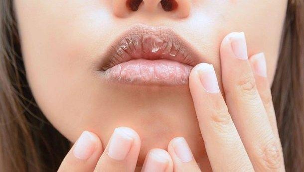 σκασμένα χείλη
